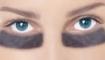 Статья. Как убрать синяки под глазами, как избавиться от отеков кругов под глазами