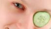 Статья. Ячмень на глазу, ячмень лечение народными средствами, как лечить ячмень быстро